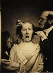 Dr. Duchenne de Boulogne experiments with electricity on a man's face muscles in 1862