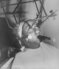 Removing freckles 1930